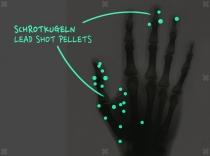 Effekt der 'Forscherfolie' auf der Röntgenhand